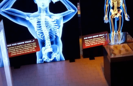 Bodies Exhibition in Sofia